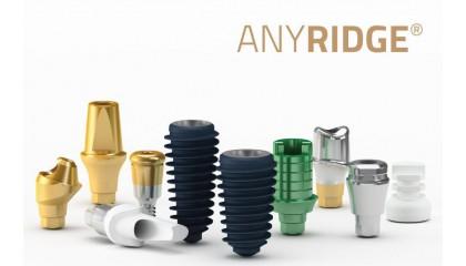 AnyRidge Implantat System & Prothetik